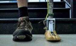 Разработана искусственная лодыжка, адаптирующаяся к неровным поверхностям