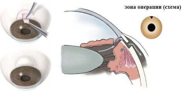 Операция трабекулоэктомии при глаукоме