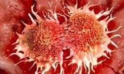 Новая технология позволяет обнаружить рак легких на самой ранней стадии
