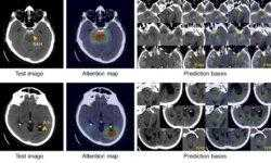 Больница Массачусетса и DeepMind независимо друг от друга приоткрыли «черный ящик» ИИ в медицине