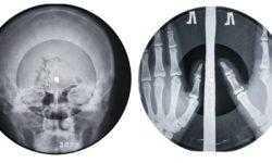 """Рентгенофонограммы возвращаются: Massive attack, Jonsi и др. выпустят записи """"на костях"""""""