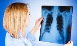 Туберкулез может быть побежден до 2045 года