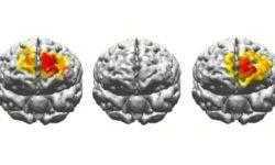 Стимуляция электричеством приводит к значительному улучшению памяти пожилых людей