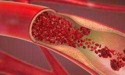 Создан гидрогель, способный остановить артериальное кровотечение