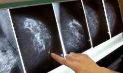 Учёные из MIT научили ИИ-систему предсказывать рак груди