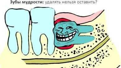 Фото [Из песочницы] Зубы мудрости: удалить нельзя оставить