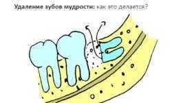 Удаление зубов мудрости. Как это делается?