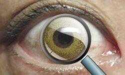 Автоматизированные контактные линзы позволяют увеличивать изображение движением век