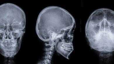 Фото #видео | Этот робот проникает в мозг человека и лечит инсульт