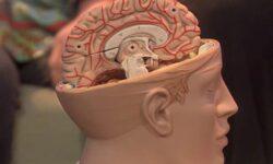 Мозг продолжает нормально работать после удаления одного из полушарий