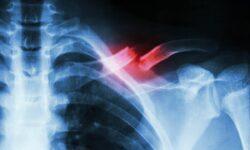 Экспериментальное лечение может помочь в несколько раз быстрее срастить сломанные кости
