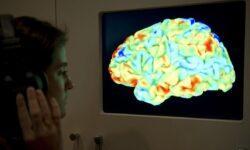 Мозг хулиганов оказался меньше, чем у всех остальных людей
