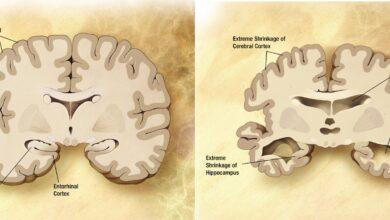 Photo of Может ли вирус герпеса вызвать болезнь Альцгеймера?